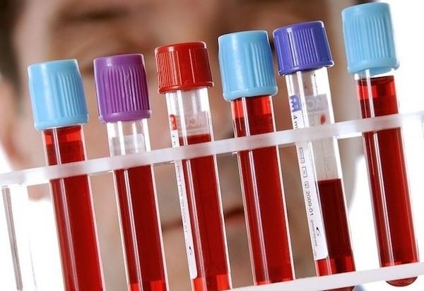 кровь в лабораторных пробирках