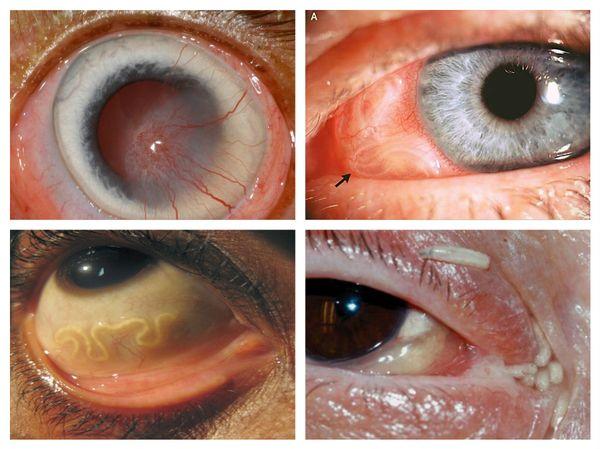 Описторхоз глазной