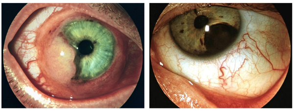 Цистицеркоз глазной