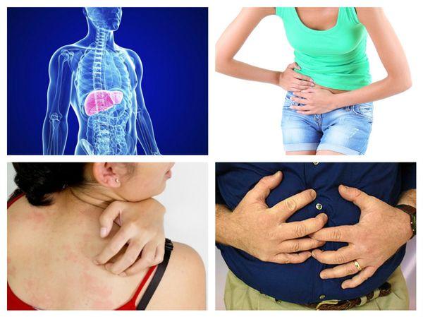 симптомы поражения печени