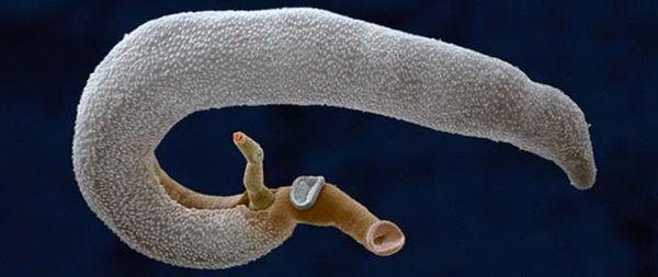 Шистосомоз паразит
