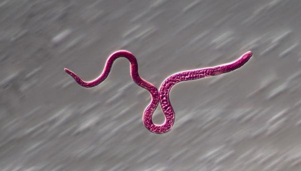 паразит Трихинелла