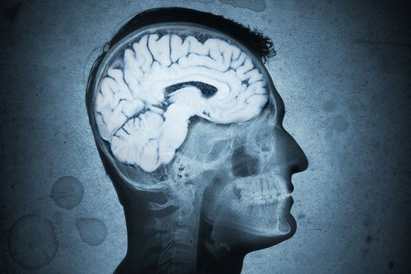 паразиты в человеческом мозге