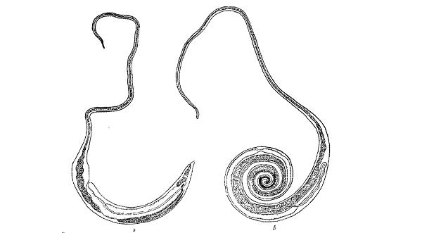 Власоглав червь