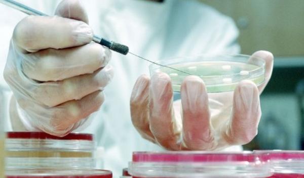 Расшифровка анализов на токсоплазмоз