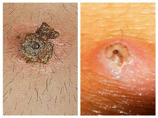 Личинки в коже человека миаз