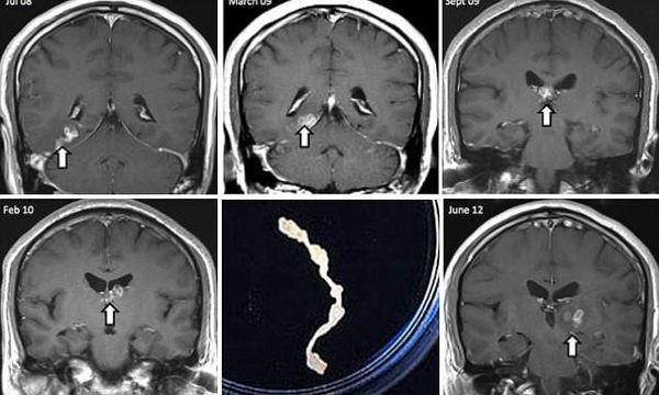 развития личинки в головном мозге