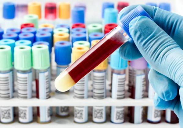 кровь в пробирках для анализа