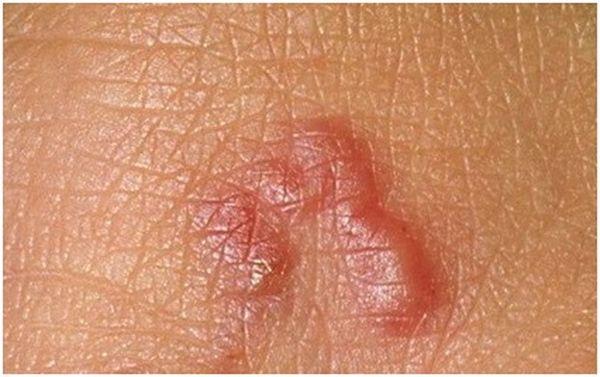 проявления на коже