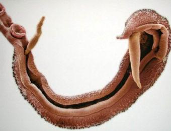Шистосомоз, поражающий мочеполовую систему: способы заражения, клинические проявления, лечение и профилактика заболевания
