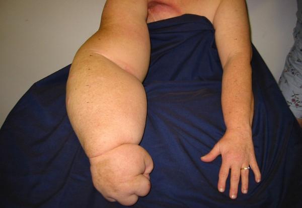слоновая болезнь руки