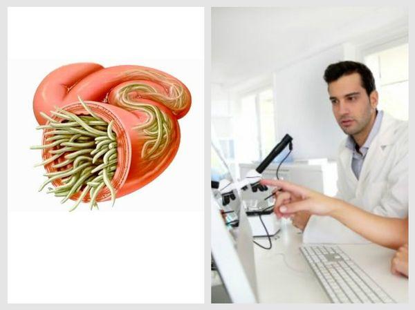 Влияние глистов на нервную систему