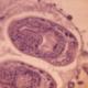 Эхинококкоз – гельминтоз, угрожающий жизни