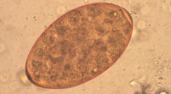 Цикл развития гельминта фасциолы