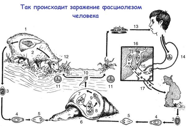 Механизм развития фасциолёза у человека