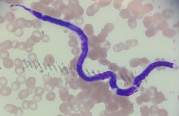 Нематода, круглый червь, Dirofilaria immitis.