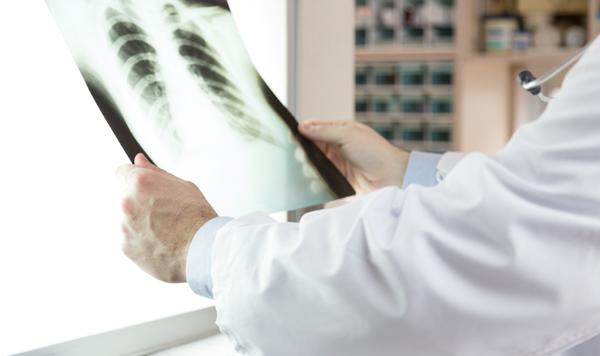 диагностика микоплазменной пневмонии