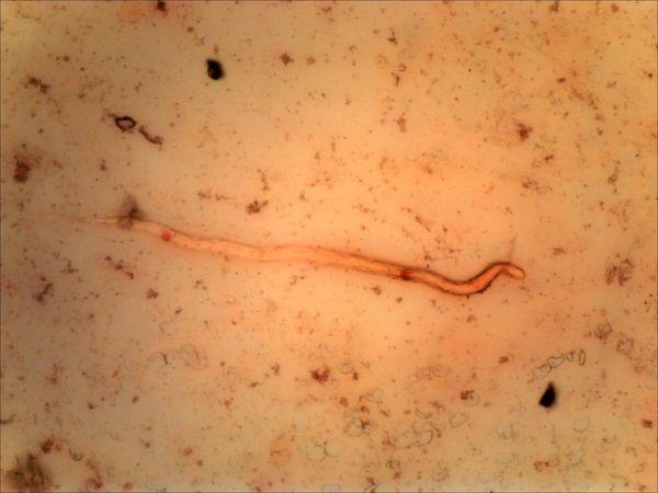 кто лечит от глистов и паразитов
