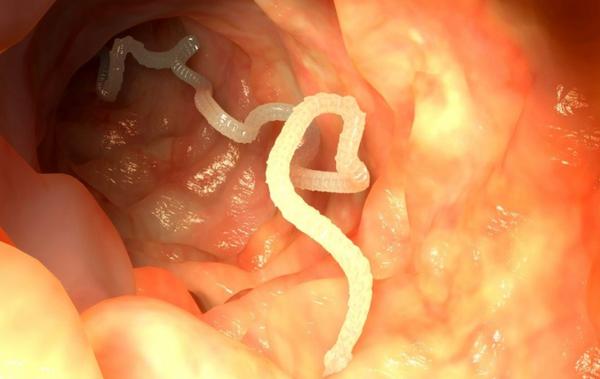 Ленточные черви в кишечнике