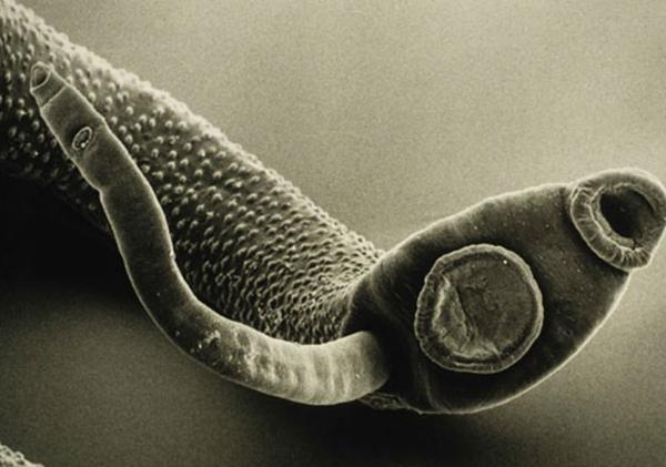 паразиты в головном мозге человека фото