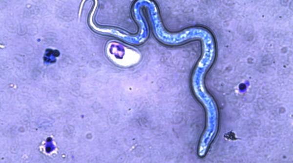 паразиты в сердце человека фото