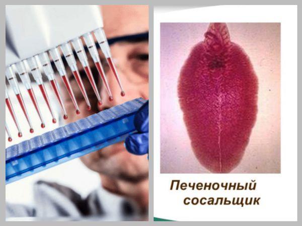 Диагностика и выявление печеночной двуустки