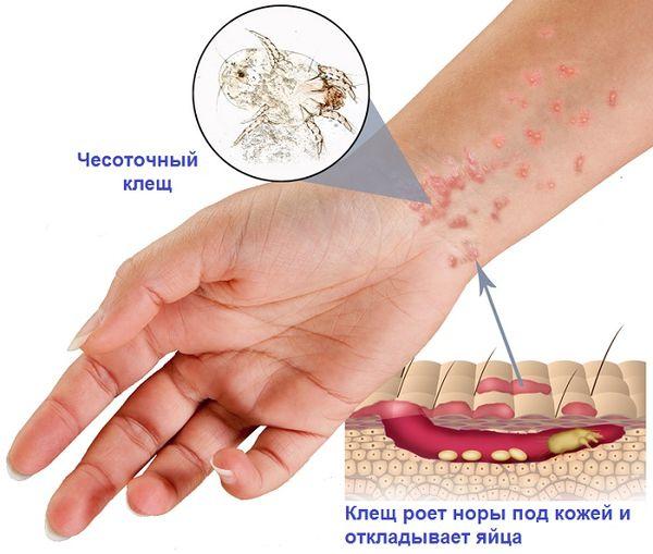 подкожные паразиты у человека на теле фото