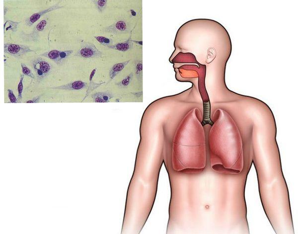 Пневмония вызванная хламидиями