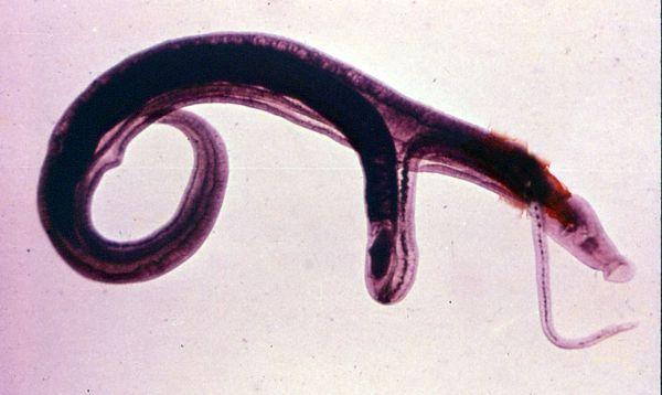 Шистосомы паразиты