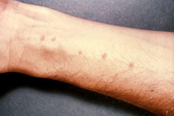 симптомы шистосомоза