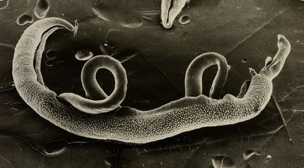 яица шистосом
