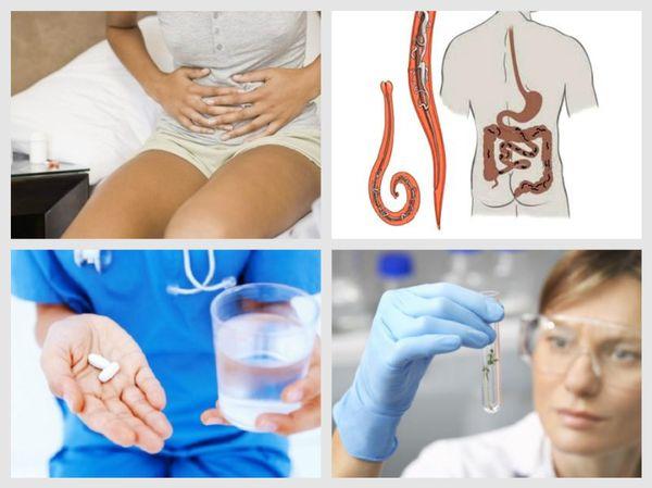 Лечение гельминтозов у взрослых
