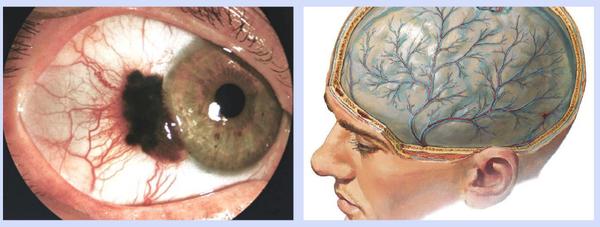 Цистицеркоз мозга и глаза