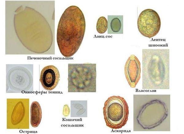 Какие глисты живут в кишечнике фото