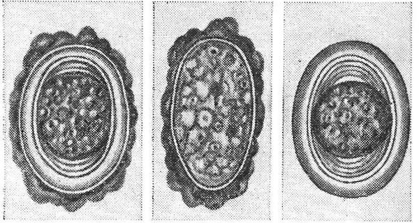 аскаридоз у ребёнка