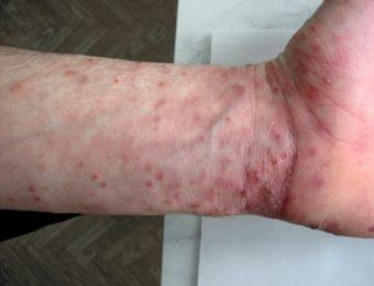 Чесотка — заболевание, вызванное микроскопическим паразитом