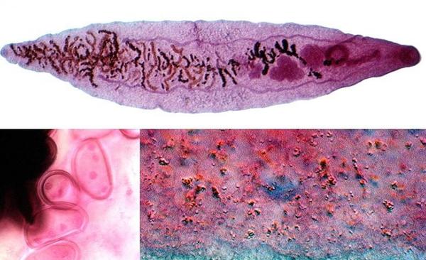 Острая стадия дикроцелиоза