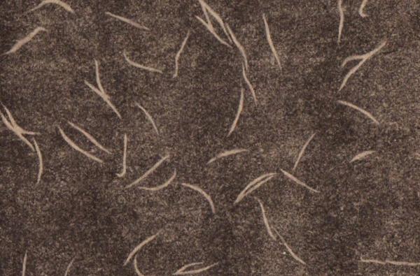 Проявления энтеробиоза