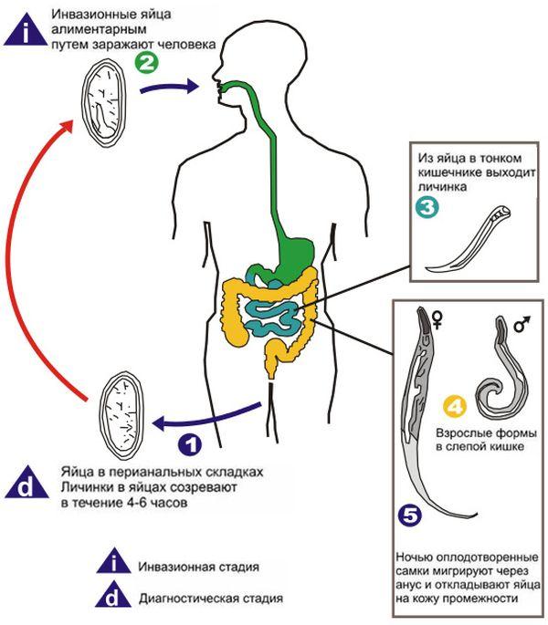 Заражение энтеробиозом